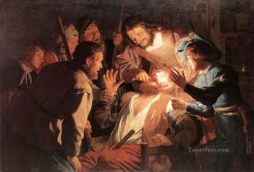 Night Art - The Dentist nighttime candlelit Gerard van Honthorst